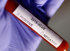 UAE announces two more coronavirus deaths