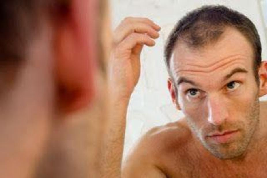 The Bald Truth 10 Reasons Why You Are Losing Your Hair Arabianbusiness